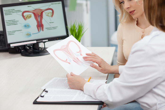 da Vinci Surgery; Experienced female gynecologist is explaining to a woman the concepts of her disease. She is holding and showing a picture of uterus. Young lady is looking at it seriously